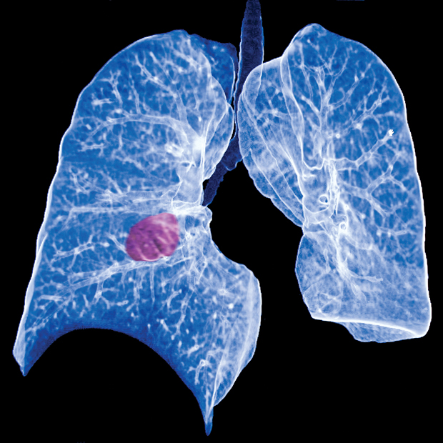Patients being screened for lung cancer should be alerted that there is a high likelihood a nodule requiring monitoring will be identified and that they should be willing to return annually even if th